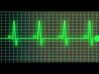 heart beat ekg